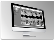 Software CDR DICOM de Schick by Sirona